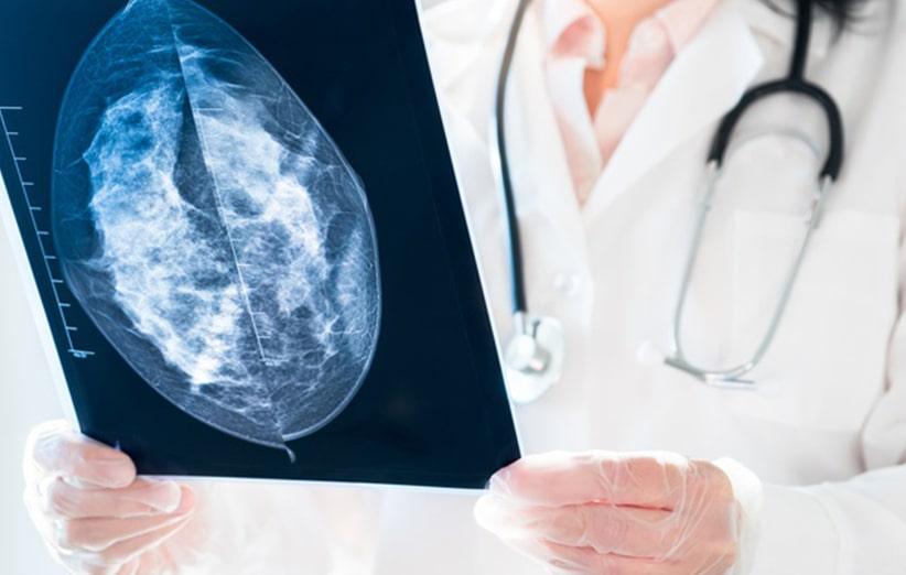 سرطان های شغلی شایع ناشی از عوامل محیطی
